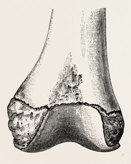 epiphyses of the femur, medical equipment, surgical instrument, history of medicine