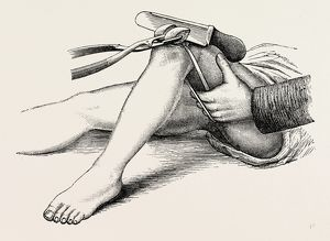 excision of the knee, the sawing of the lower end, medical equipment, surgical instrument