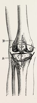 excision of the operation the limb, medical equipment, surgical instrument, history