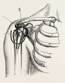 excision of the shoulder, medical equipment, surgical instrument, history of medicine