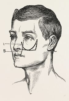 excision of the tipper jaw, medical equipment, surgical instrument, history of medicine