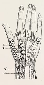 excision of the wrist, medical equipment, surgical instrument, history of medicine