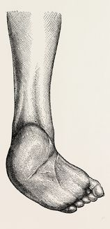 incurved form of the foot, the planzar, medical equipment, surgical instrument, history