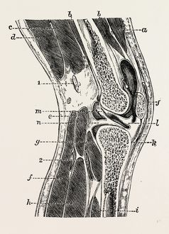 vertical section of knee-joint, medical equipment, surgical instrument, history of